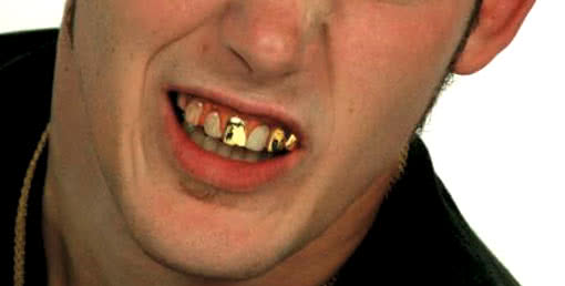 Goldgräber Veneer Zähne