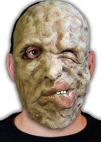 Leprosy victims half mask