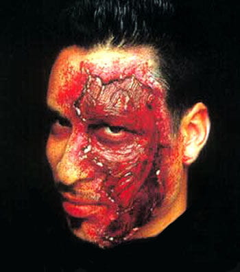 Chemical Peel Wound Appliance