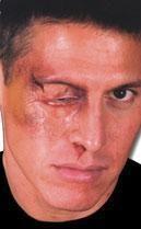 Puffy eye wound